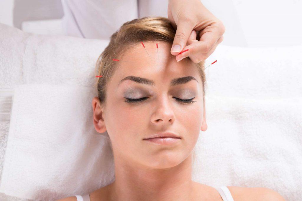 Lifting facial acupuntura elche