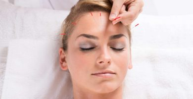 Lifting facial acupuntura elche